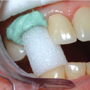 Gingival Retraction